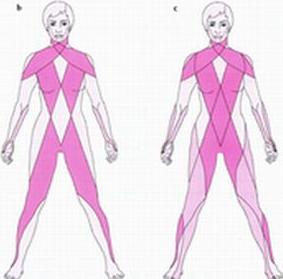 筋膜連鎖の一例