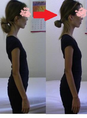 猫背と姿勢の矯正1