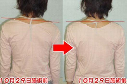 肩の高さや肩こりの変化