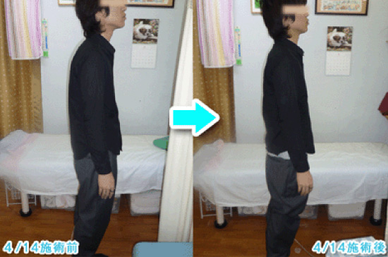 猫背と姿勢矯正に頭部の調整で対応する